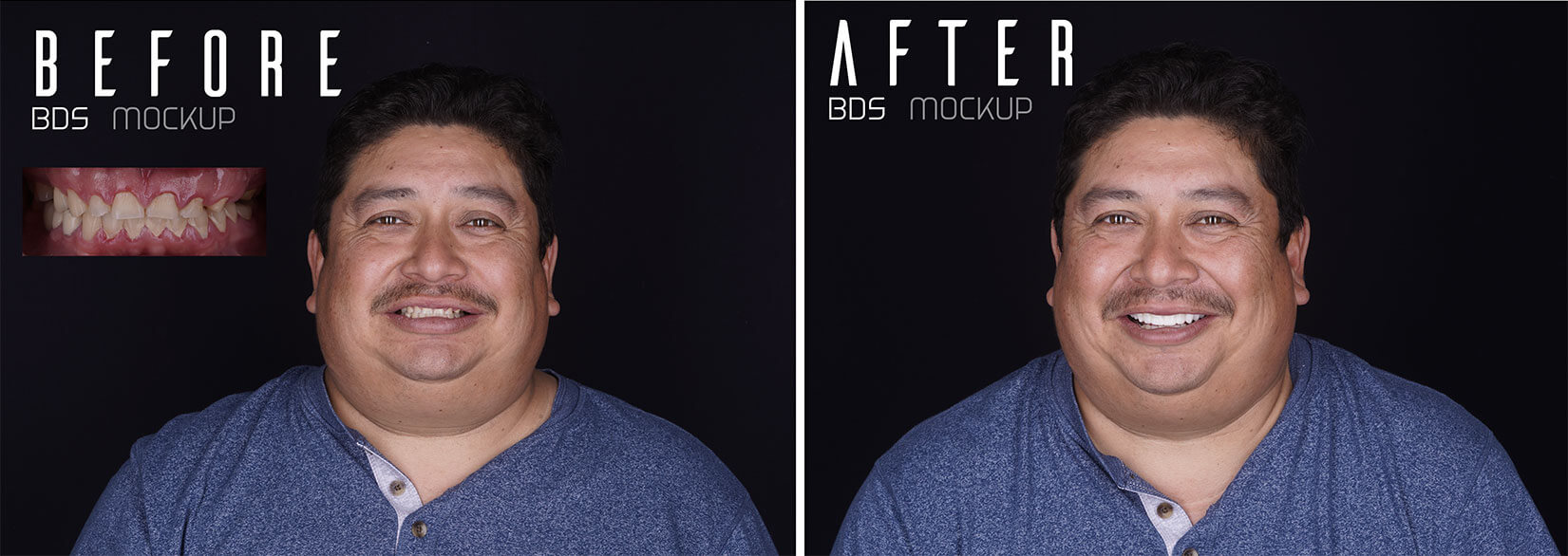 Before After BDS Mockup