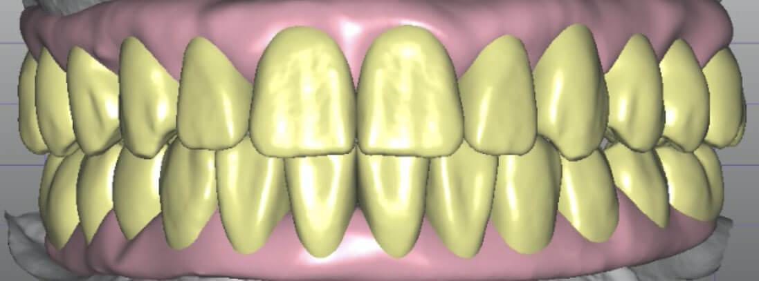 cuong-after-teeth