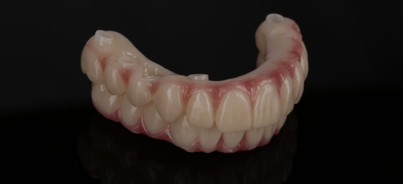 cuong-final-dentures