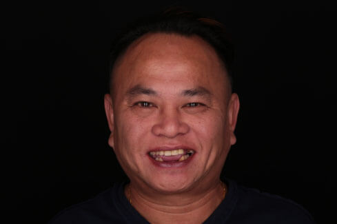 cuong-smile-makeover