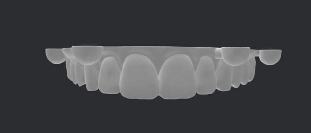 cuong-treatment-screenshot