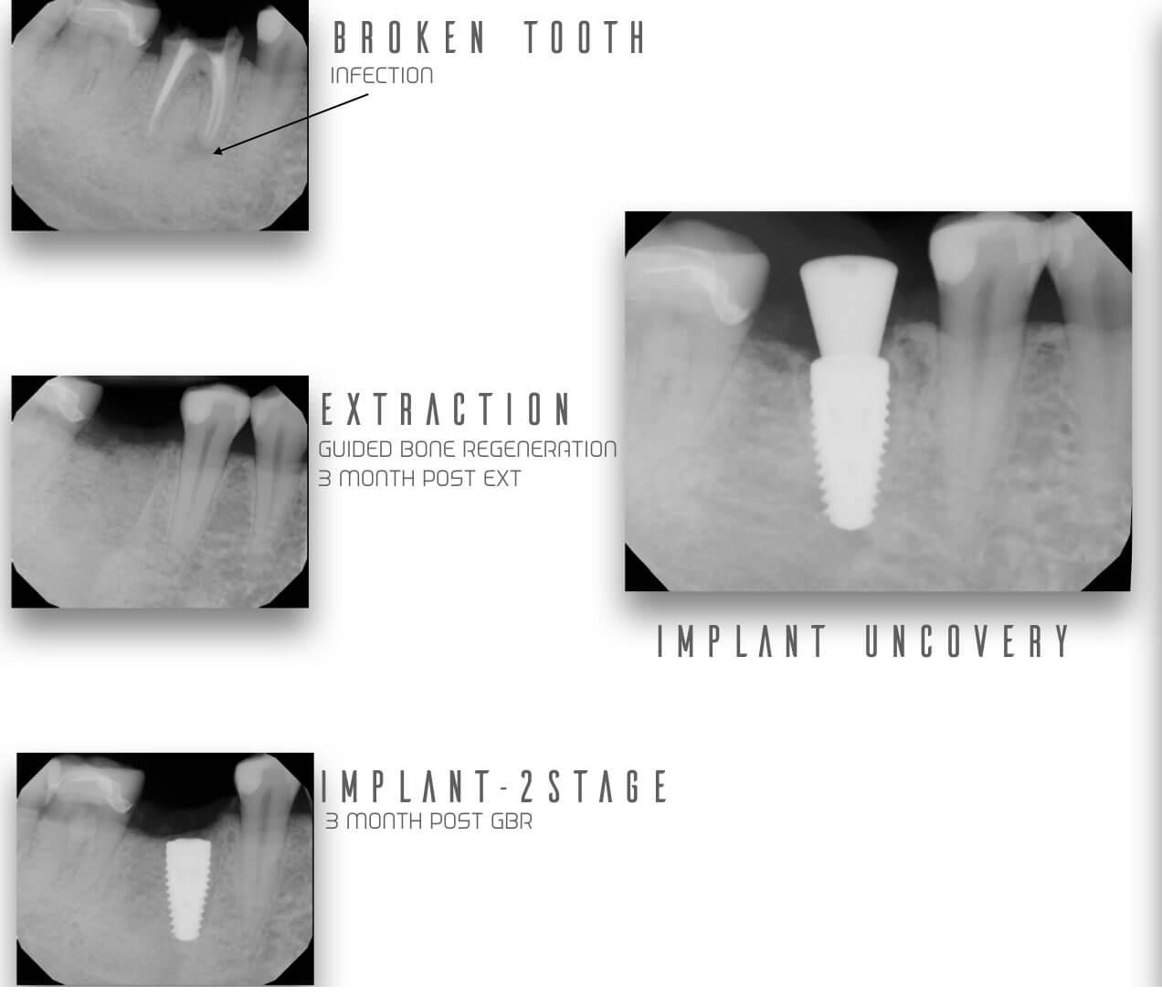Dental Implants Stages