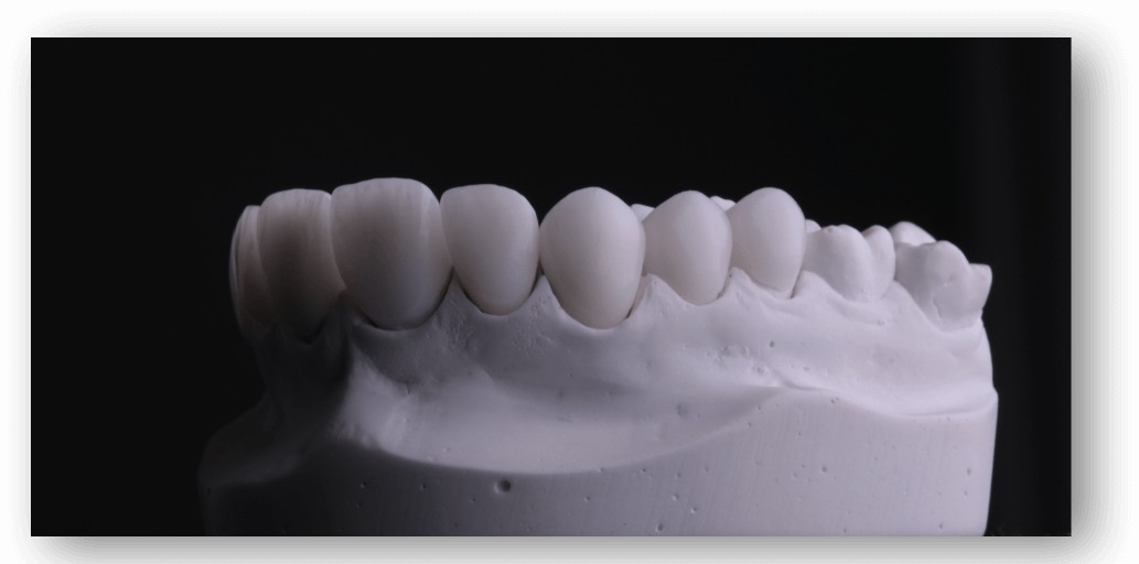 kristeen-teeth-reconstruction