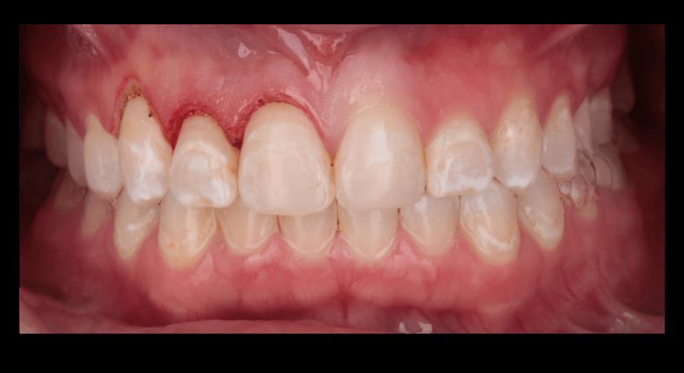 Kristeen teeth reconstruction