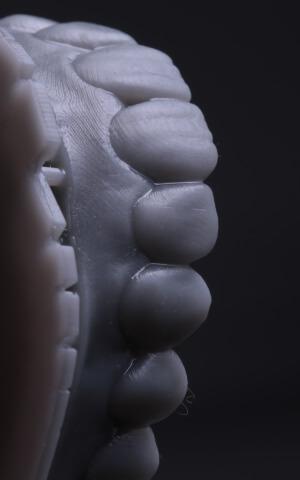 3D Dental X-Rays in Cypress TX 77433